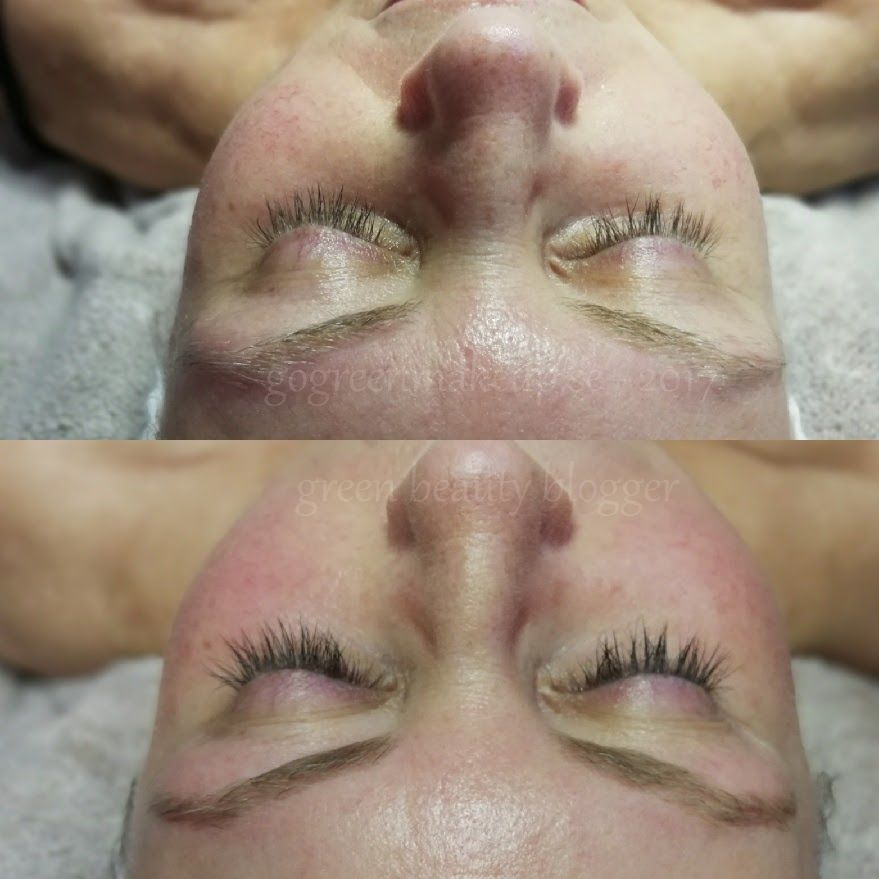 Probiotisk ansiktsbehandling med healing